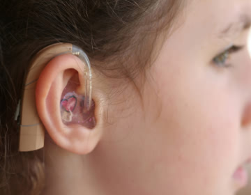 hearing aids - ��itme Cihaz� �nerisine ihtiyac�m var. Yard�mc� olur musunuz?